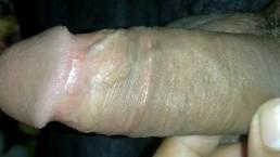 Penis Closeup